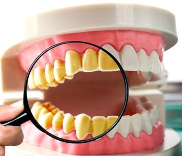 3 Best Ultrasonic Cleaner for Dentures, Retainers & Invisalign